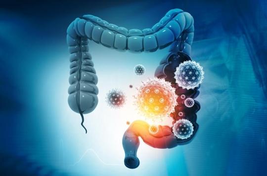 Cancer du rectum avancé : de nouveaux espoirs de traitement pour les malades