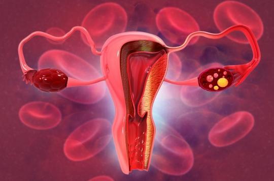 Journée mondiale du cancer de l'ovaire : \