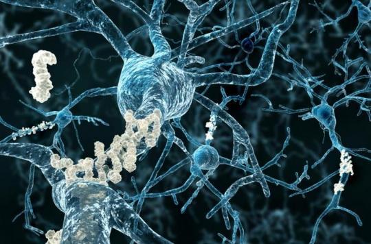 Maladie d'Alzheimer: un traitement pourrait enfin être disponible \