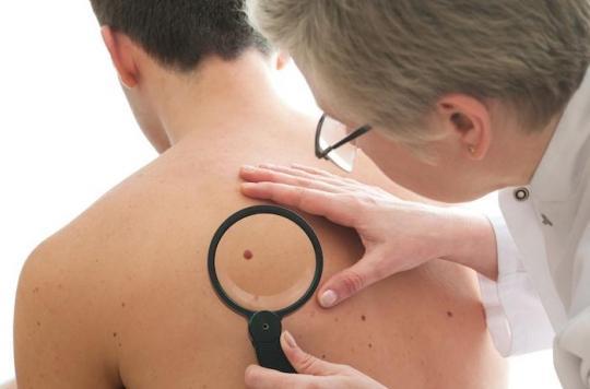 Cancer cutané : une bactérie protège contre les cellules tumorales