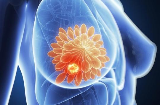 Cancer du sein incurable : un nouveau « médicament intelligent » donne de l'espoir