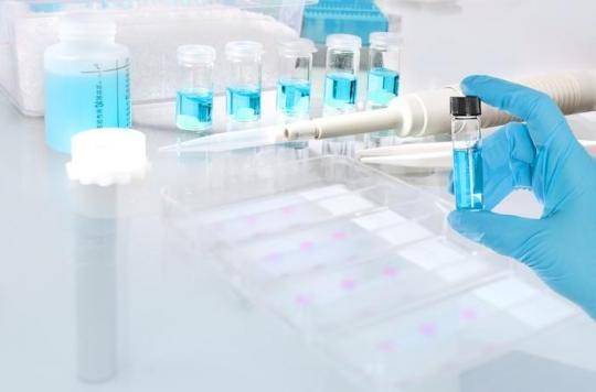 Les nouveaux mots du cancer : qu'est-ce que la biopsie liquide ?