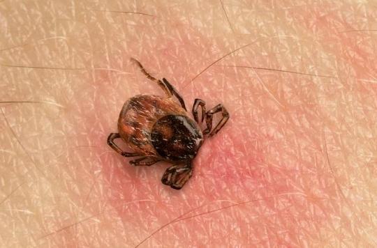 Maladie de Lyme: empoignade en France et nouvelles recommandations en Grande-Bretagne