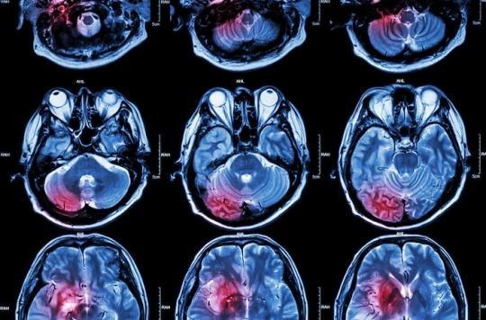AVC : stimuler le nerf vague améliore la récupération des capacités motrices