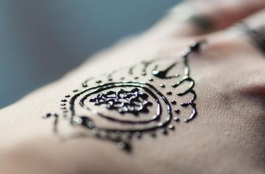 Allergie : elle se fait faire un tatouage au henné noir qui lui brûle tout le bras