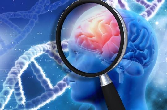 Des scientifiques ont découvert le gène protecteur d'Alzheimer