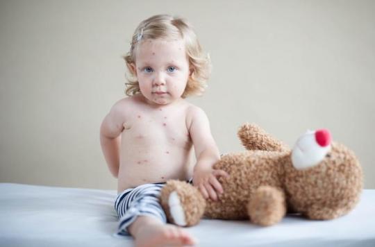 Rougeole : les diagnostics en hausse de 30% dans le monde à cause de l'insuffisance vaccinale