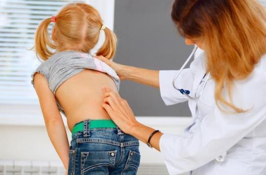Scoliose : et si une légère modification de l'alimentation la faisait disparaître ?