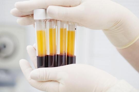 Covid-19 : le plasma masculin produit plus d'anticorps que celui des femmes