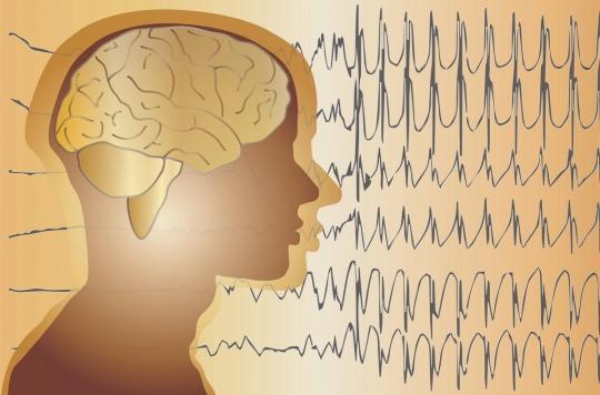 Les ultrasons pour détecter l'épilepsie plus tôt