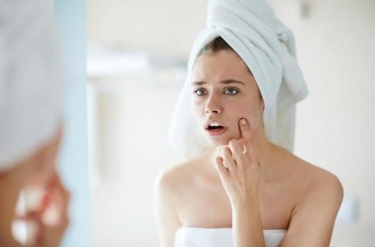 Acné : un vaccin contre la maladie de peau se développe