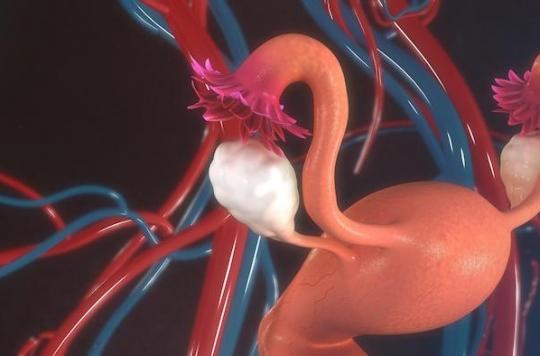 Fertilité : création d'ovaires artificiels pour aider les femmes à avoir des enfants après un cancer