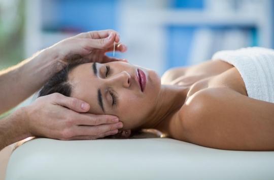 Non, l'acupuncture n'améliore pas le taux de natalité dans le cadre d'une FIV