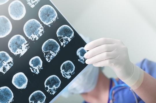 Alzheimer: des zones du cerveau s'atrophient avant l'apparition des premiers symptômes