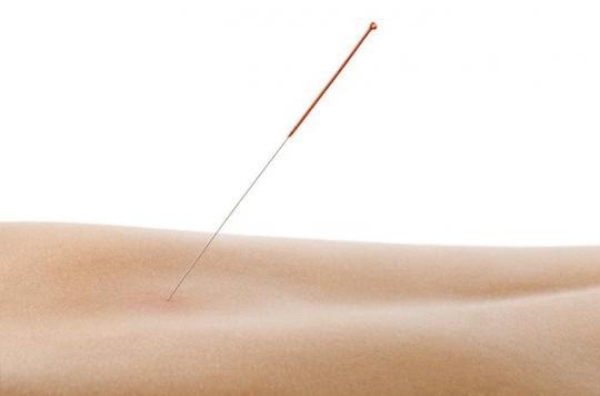 Acupuncture : les médecins discutent de la prescrire dans la douleur chronique