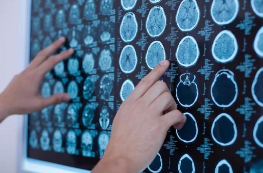 Cancer : l'immunothérapie plus efficace chez les hommes que chez les femmes ?