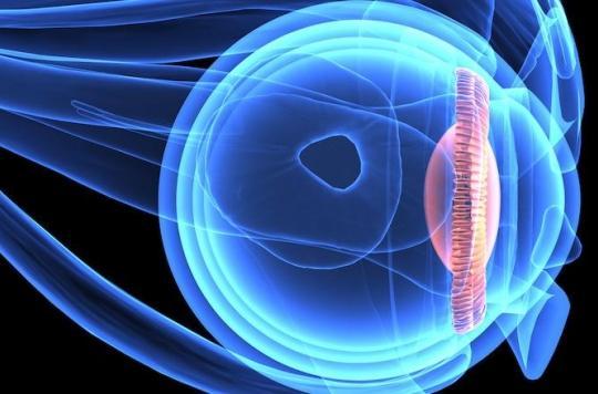 Décollement de rétine : la chirurgie mini-invasive fait mieux et évite l'effet Picasso