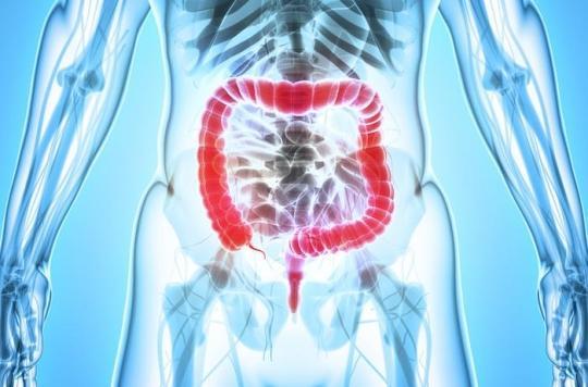Cancer du côlon : deux additifs alimentaires utilisés comme compléments en fer augmentent les risques