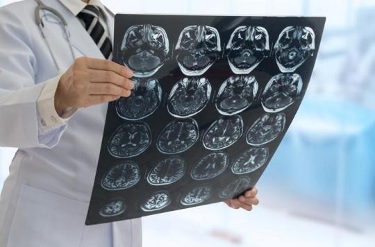 Les commotions ont un impact durable sur l'activité cérébrale des jeunes adultes