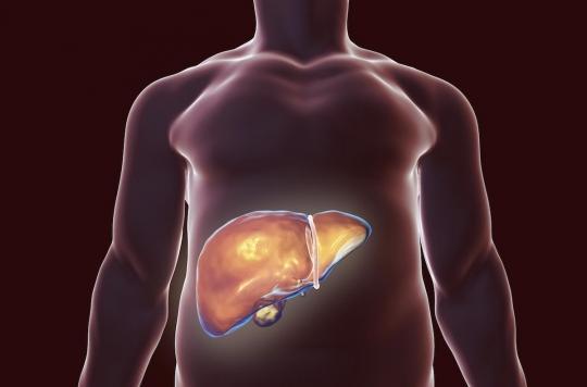 Hépatite C chronique : les « antiviraux à action directe » recommandés pour tous les malades