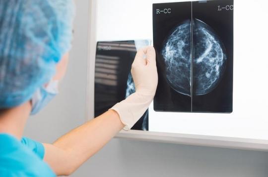 Cancer du sein : 99 femmes sur 100 sont toujours en vie après un diagnostic précoce