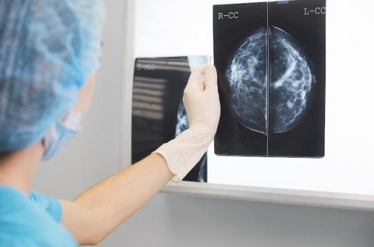 Cancer du sein : un deuxième avis médical modifie le diagnostic dans 43% des cas