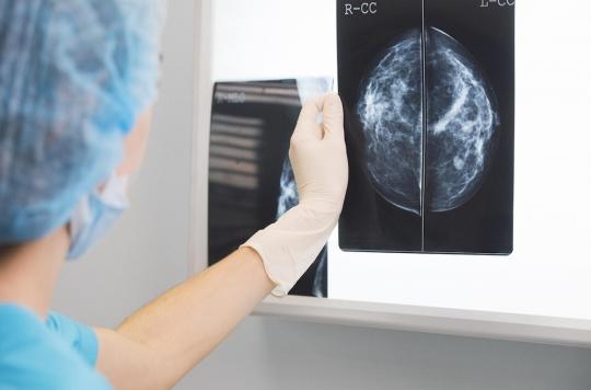 Cancer du sein : un nouveau traitement améliore considérablement le taux de survie