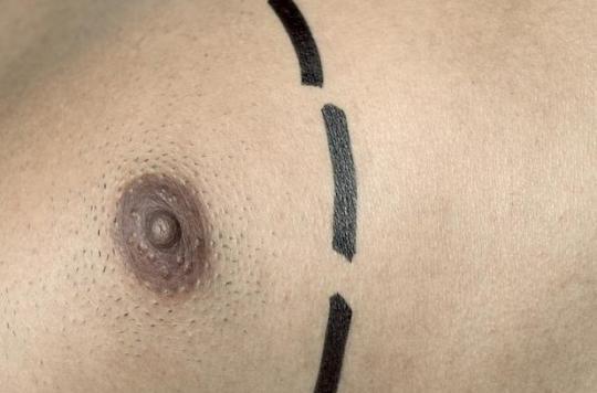 Le cancer du sein existe aussi chez les hommes