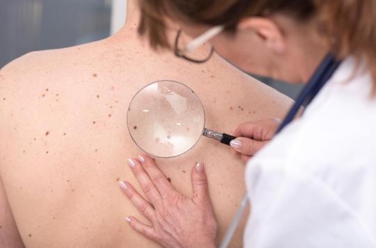 Mélanome : un test génétique pour dissuader les comportements à risque