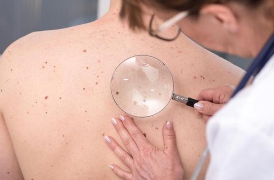 Cancer de la peau : comment reconnaître un grain de beauté à risque ?