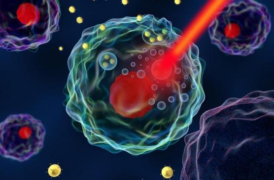 Cancer du pancréas : une administration des traitements par nanoparticules est prometteuse