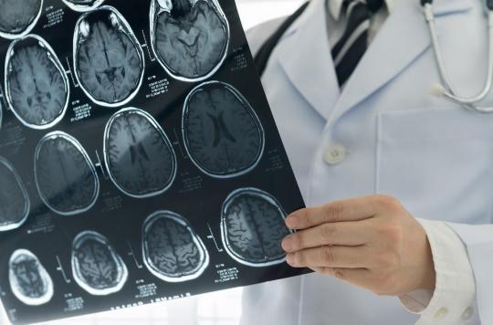 La Covid-19 entraîne des problèmes cérébraux, même dans les formes bénignes