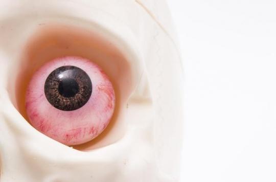 Etats-Unis : une femme se fracture l'orbite de l'œil gauche en se mouchant le nez