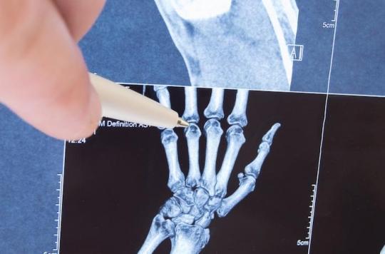 Polyarthrite rhumatoïde: le traitement précoce et intensif réduit la mortalité et le recours aux prothèses articulaires