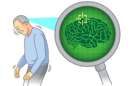 Maladie de Parkinson: de l'immunothérapie à la chirurgie, il existe de nouveaux traitements d'espoir