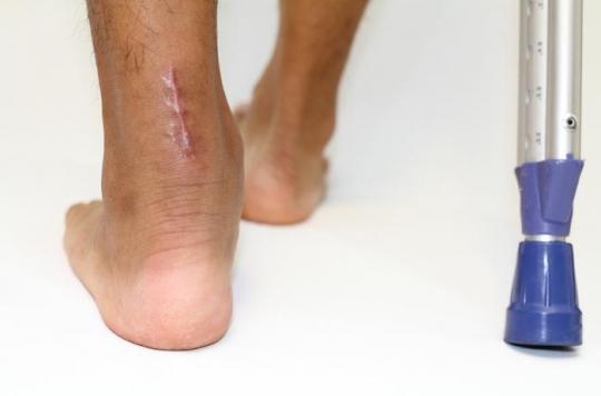 Rupture du tendon d'Achille : quand faut-il opérer ?