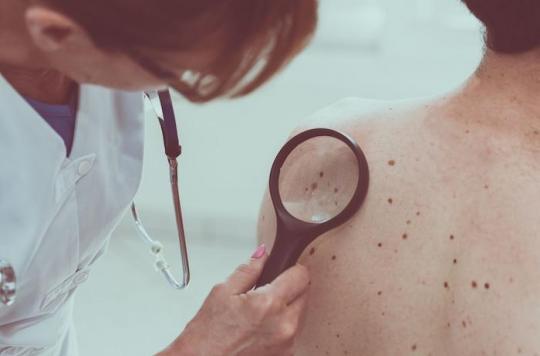 Mélanome: un vaccin anticancéreux est efficace à 100% chez les souris
