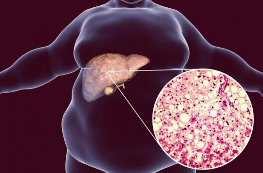 Stéatose hépatique: les bactéries intestinales peuvent aider à la traiter