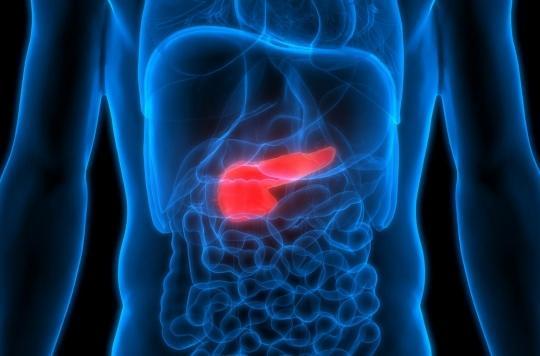 Cancer du pancréas: des bactéries buccales impliquées dans la forme grave de la maladie