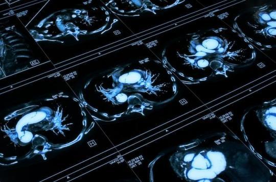 AVC : 22 nouveaux facteurs de risque génétiques