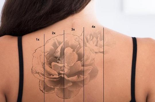 Se « détatouer », le vrai problème du tatouage