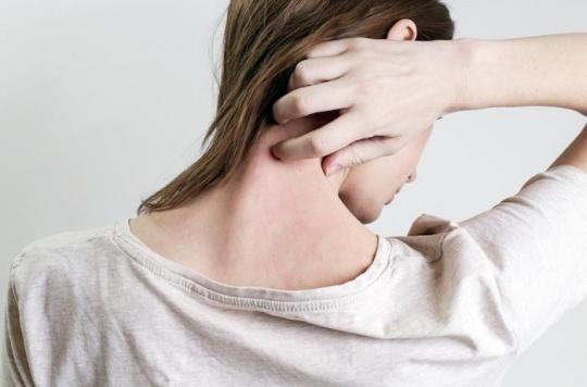 Psoriasis : une maladie de peau terriblement gênante