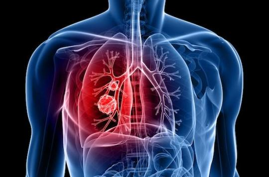 Cancer du poumon : allongement décisif de la survie si une thérapie ciblée est possible