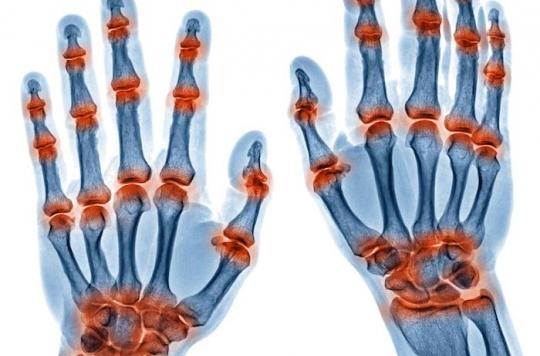 Polyarthrite rhumatoïde : il sera bientôt possible de la prévenir