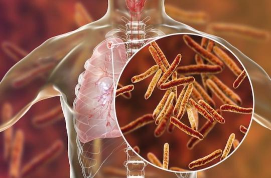 Dreux : un cas de tuberculose détecté au sein du personnel de l'hôpital