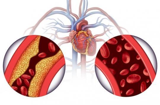 Hypertension artérielle : seulement moins d'un malade sur 2 est ...