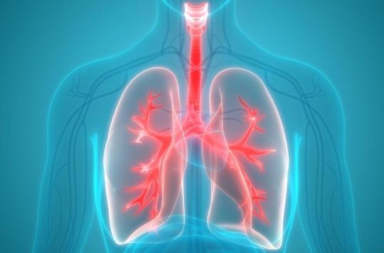 Cancer du poumon : ces signes qui doivent vous alerter