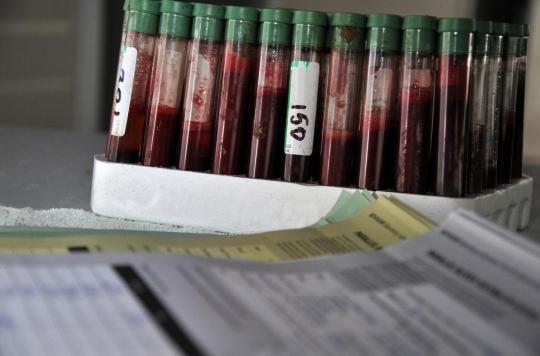 Tuberculose : bientôt un test sanguin pour diagnostiquer les personnes à risque?