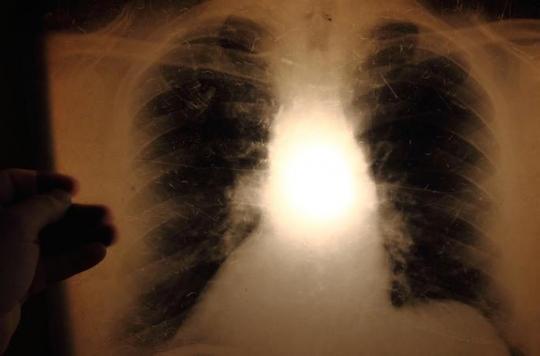 Tuberculose : un candidat-vaccin plus efficace que le BCG