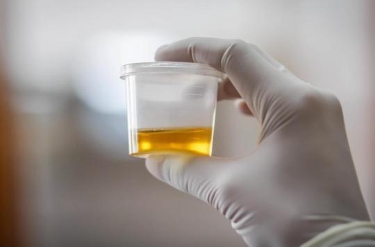 Cancer de la prostate : le taux de spermine dans l'urine permet d'évaluer le risque
